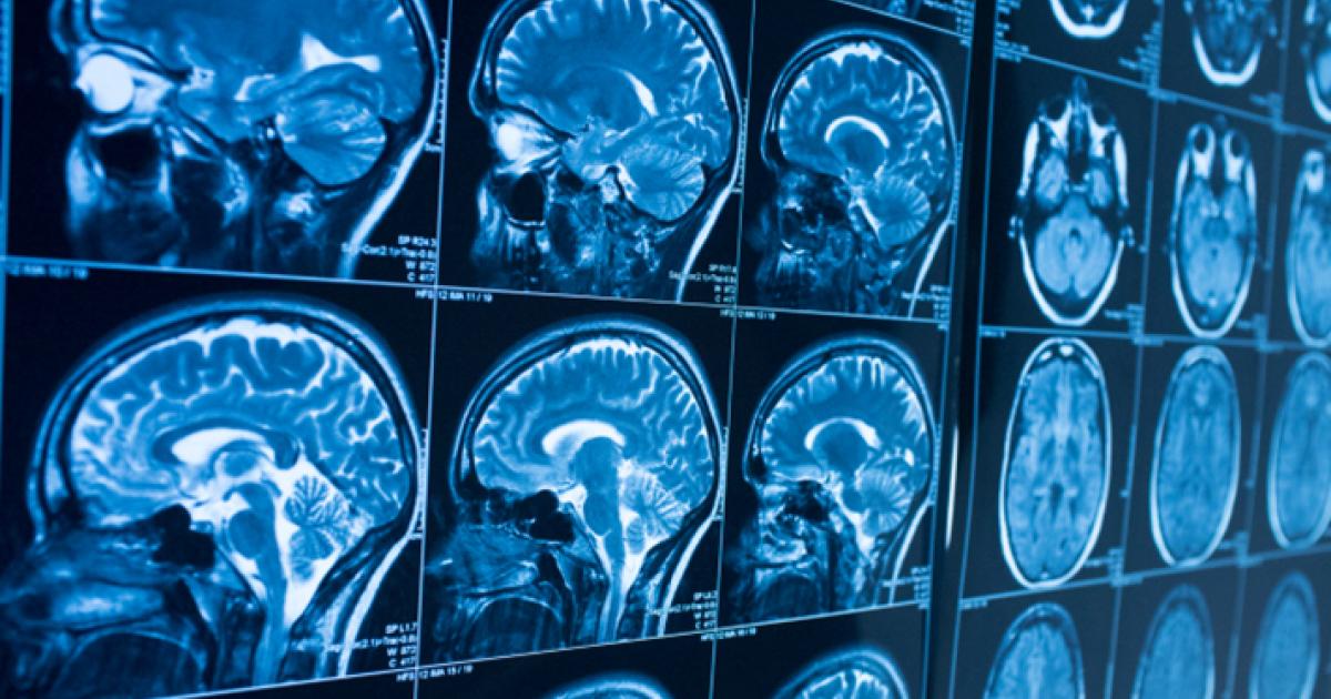 Mass General team creates portable, low-cost brain MRI scanner - Health Imaging