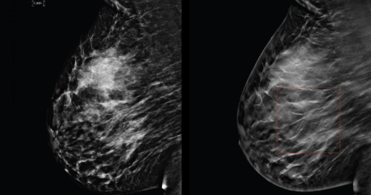 tomosynthesis for breast imaging Mammography and breast tomosynthesis what is mammography and breast tomosynthesis a mammogram is a low dose x-ray examination of the breast/s mammography plays an important part in early detection of breast cancer because it can show changes in the breast before you can feel them.