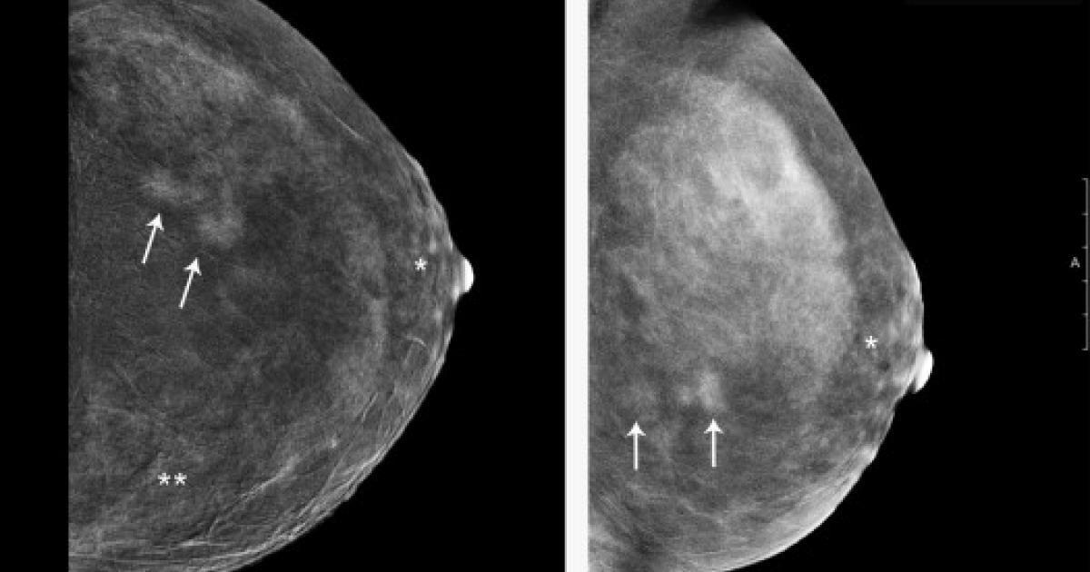 Calcium deposits and breast
