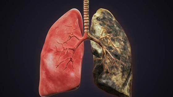 lawmakers introduce legislation to increase lung screening
