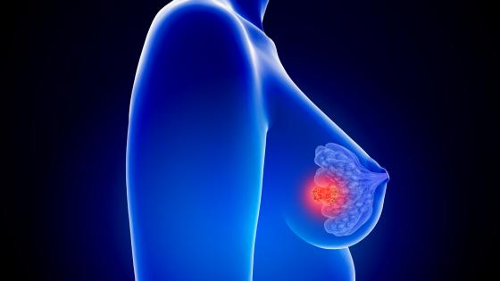 Pet Mri Spots Breast Cancer Biomarkers For Risk Based Screening